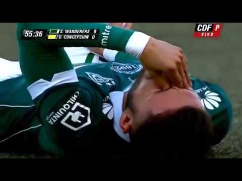 La lesión más rápida de un futbolista // Marco Medel